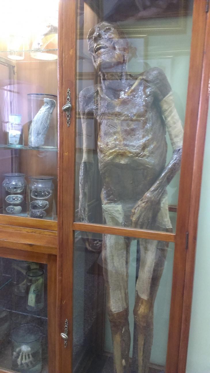 """Картини, мумія і 23 """"живих"""" трупи: анатомічний музей в Івано-Франківську вражає і навчає. ФОТО 2"""