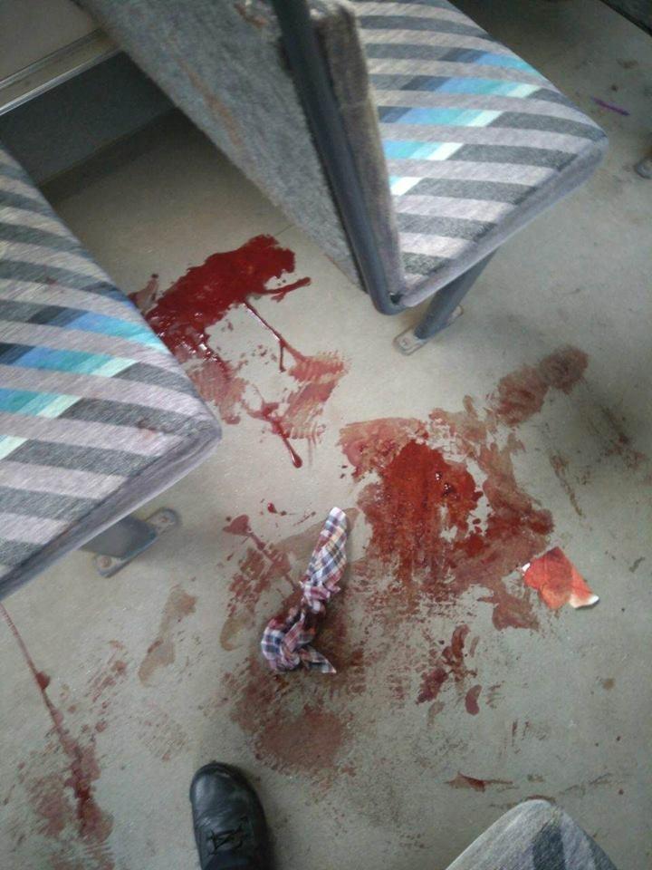 Жінка, яка ледь не стекла кров'ю у франківській маршрутці, лікуватиметься за рахунок перевізника