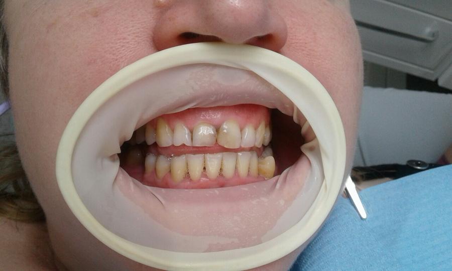 Лікарі-інтерни ІФНМУ стали призерами престижного стоматологічного конкурсу 4