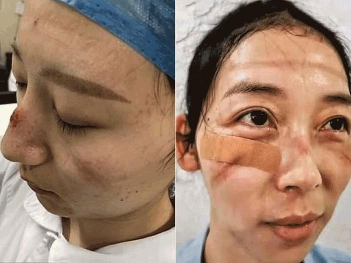 Франківські волонтери вдосконалили маски для медиків у лікарнях 1