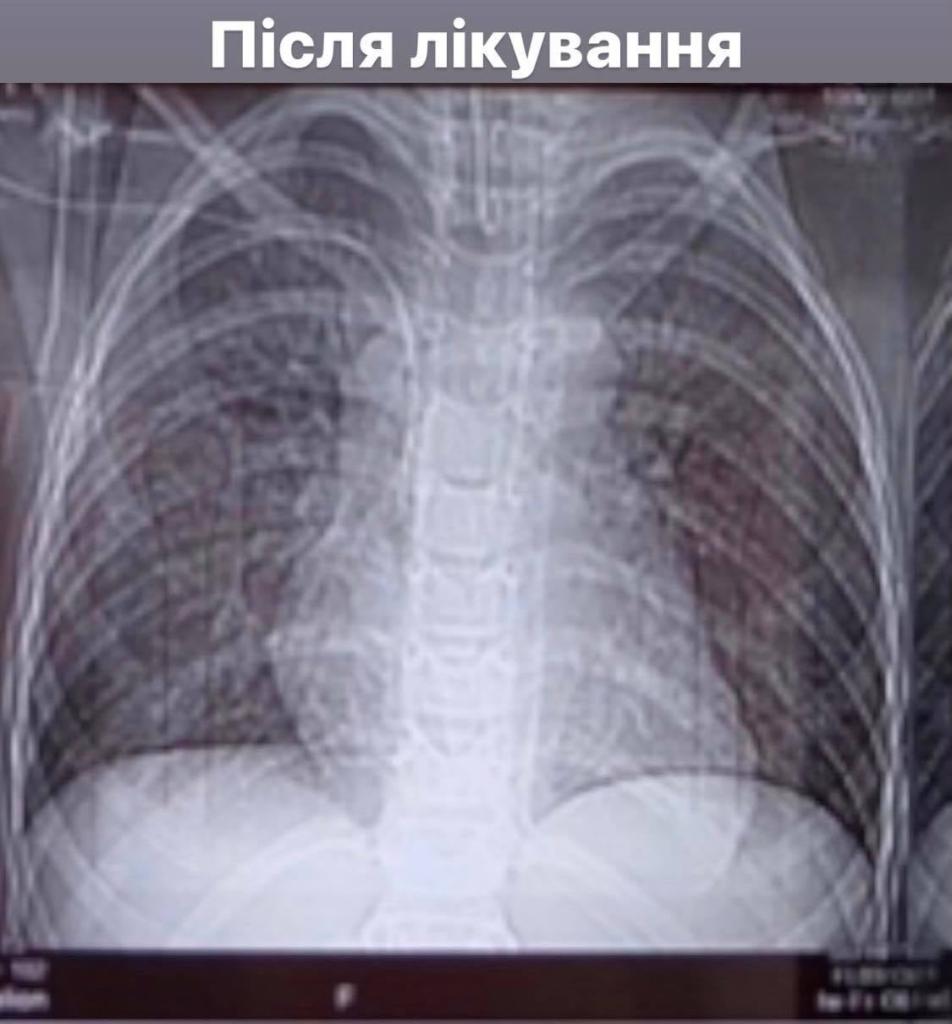Франківські медики врятували 8-річного хлопчика, який два тижні був на ШВЛ з 85% ураження легень 2